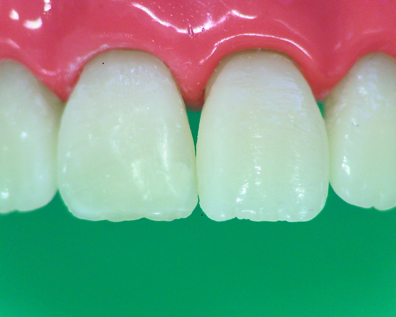 Рис. 23. Окончательный вид реставрации зуба 11.