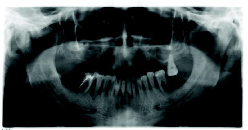 Рис. 4. Ортопантомограмма пациента Б. после двустороннего синус-лифтинга.