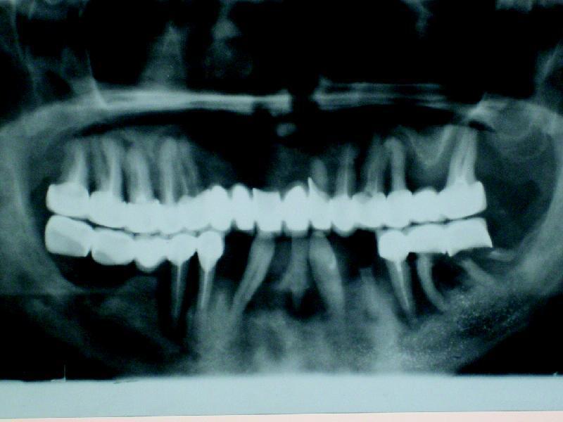 Рис. 5. Ортопантомограма пациента Ю., пародонтит 4-й степени.