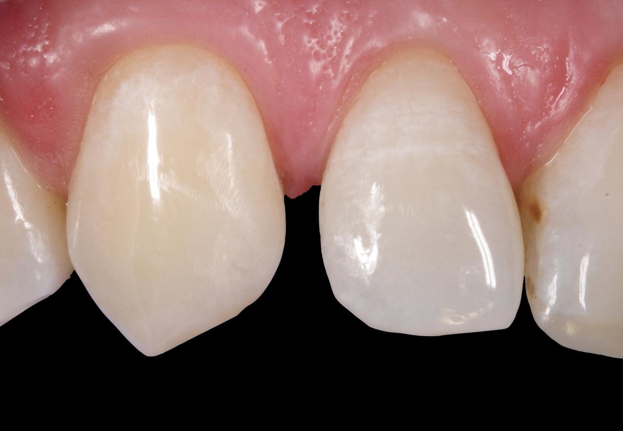 Рис. 1. Первоначальный вид клинической ситуации: диастема между зубами 12 и 13.