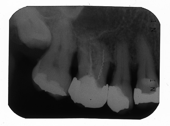 Рис. 1. Диагностическая рентгенограмма области жевательных зубов верхней челюсти справа.