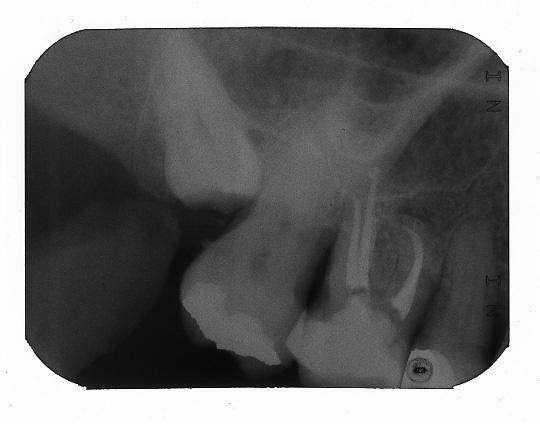 Рис. 9. Рентгенологический контроль через год после проведения лечения.