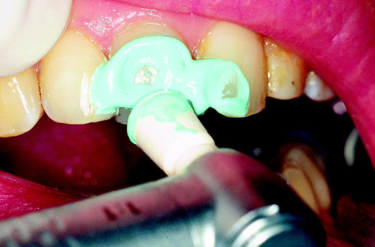 Как в домашних условиях очистить зубной налет в домашних условиях