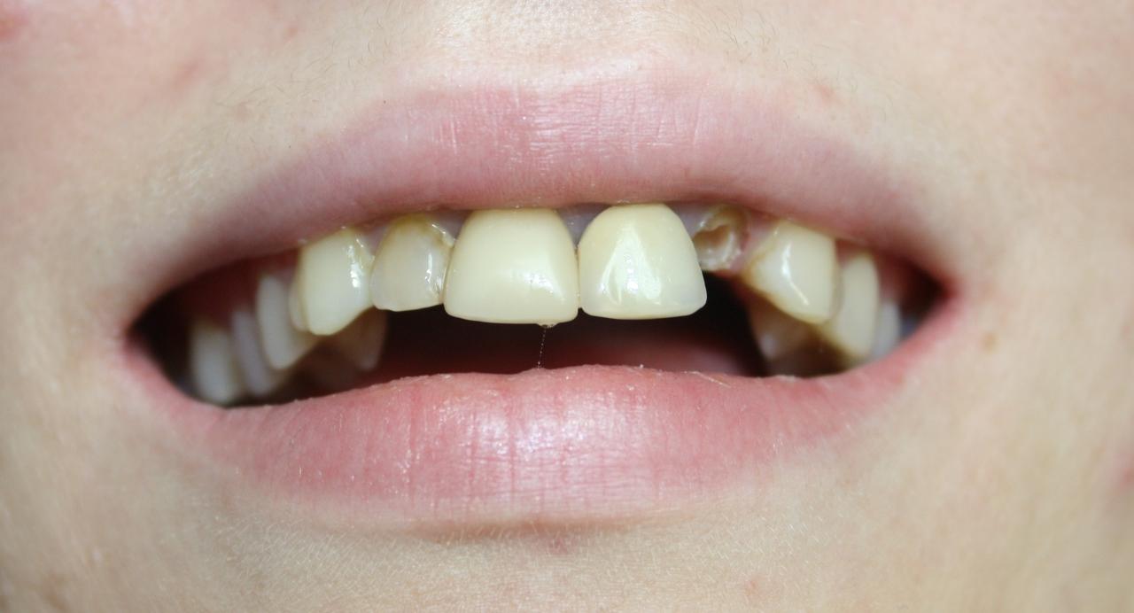 Рис. 1. Внешний вид верхних фронтальных зубов пациентки К. до начала лечения: перелом 22-го зуба, дисгармония цвета и формы.