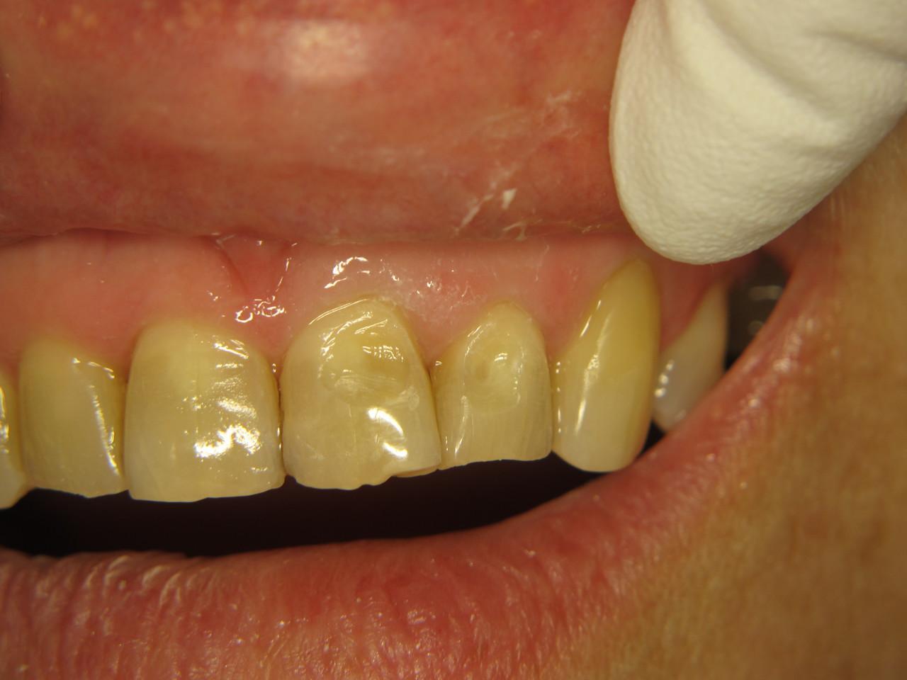 Рис. 1. Исходная клиническая ситуация: зубы 2.1 и 2.2 — эрозия эмали.