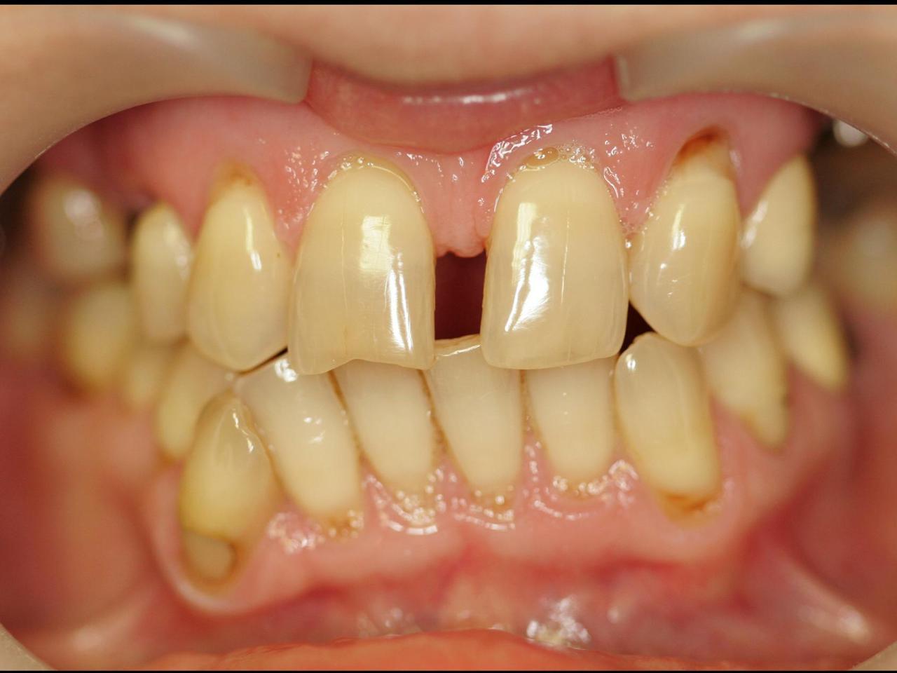 Рис. 1. Вид зубов до реставрации.