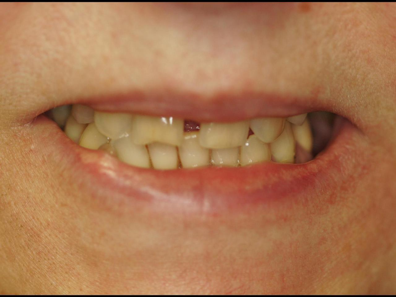 Чем заделывают трещины в зубе