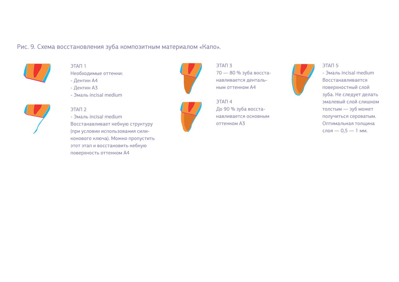 """Рис. 9. Схема восстановления зуба композитным материалом """"Капр""""."""