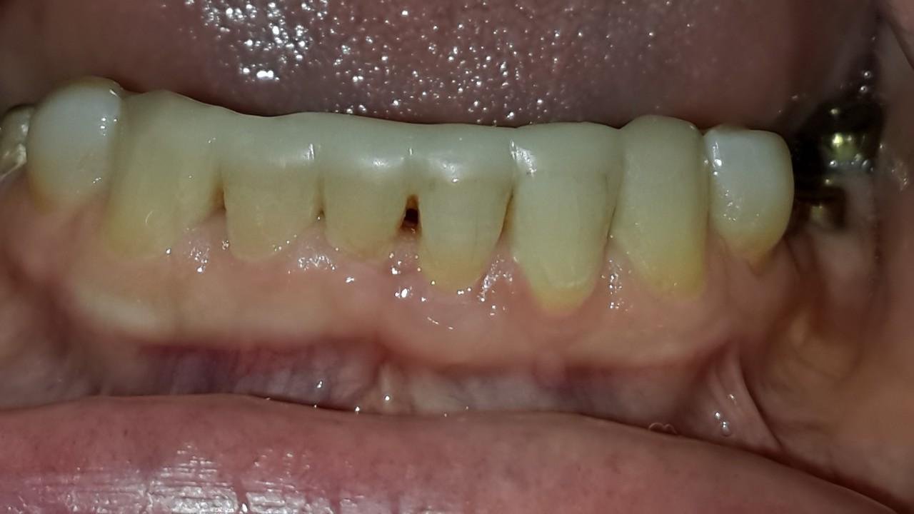 Рис. 5. Проведено восстановление нижних передних зубов шинирующей композитной реставрацией.