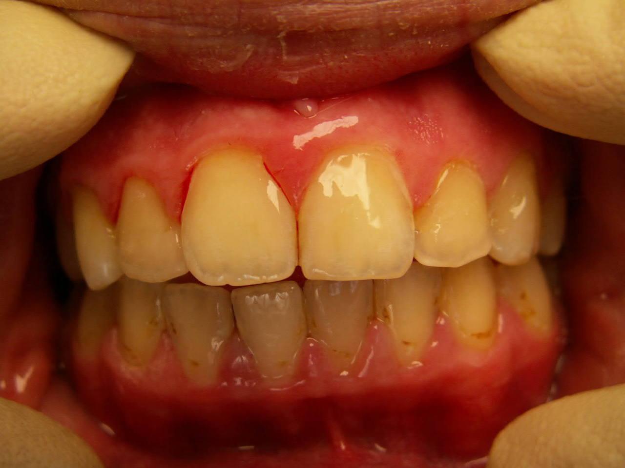 Рис. 27. Состояние пломб в верхних резцах и клыках спустя 1 год после лечения.