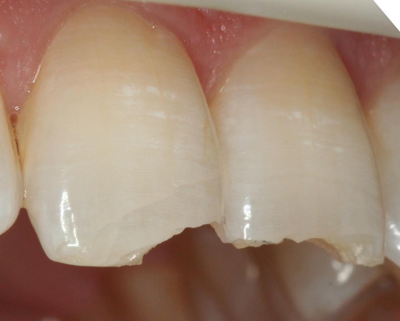 Рис. 3. Горизонтальные трещины, образовавшиеся в результате травмы.