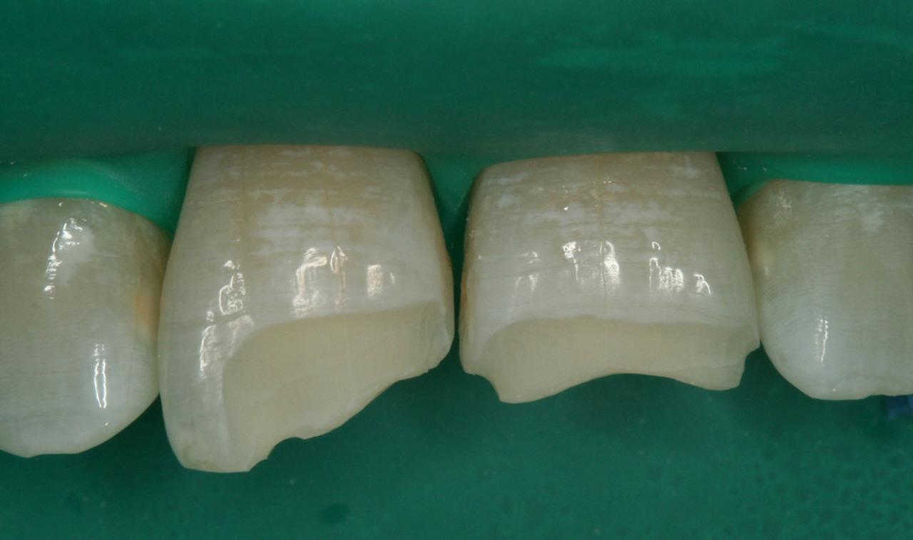 Рис. 4. Вид после финишной обработки краев эмали силиконовой головкой.