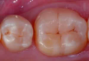 Рис. 9. Вид с вестибулярной стороны демонстрирует отличную интеграцию реставрации с соседними зубами.