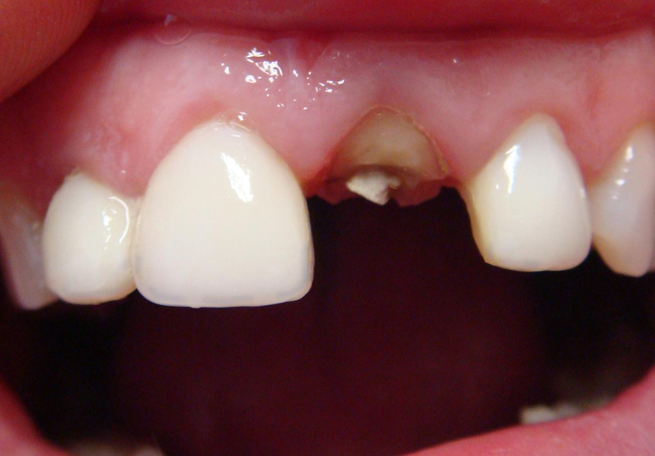 Рис. Фрактура коронковой части 21 зуба.