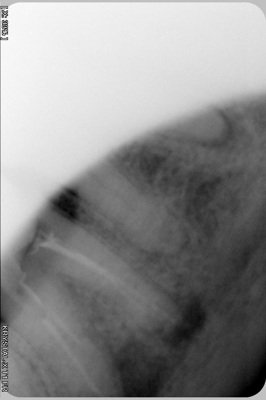 Рис. 1. Внутриротовая рентгенограмма 4.7 зуба, preop.