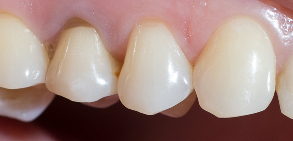 Рис. 1. Клиновидные дефекты зубов 1.4, 1.5.