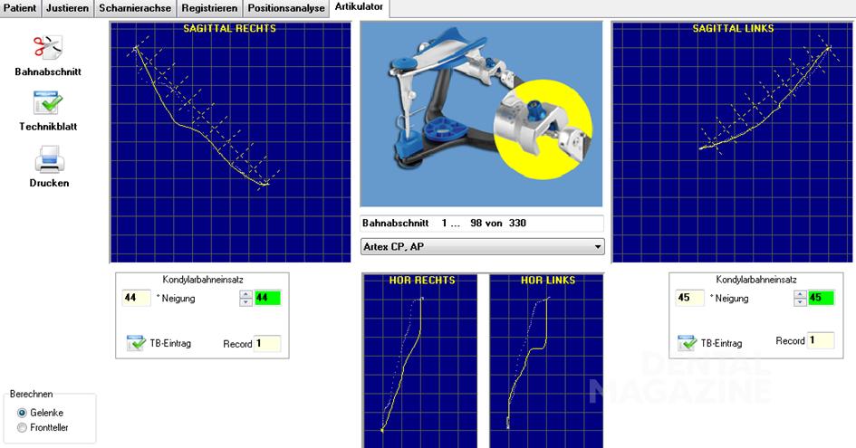 Рис. 4. Частичное эксцентрическое смещение суставного диска справа.