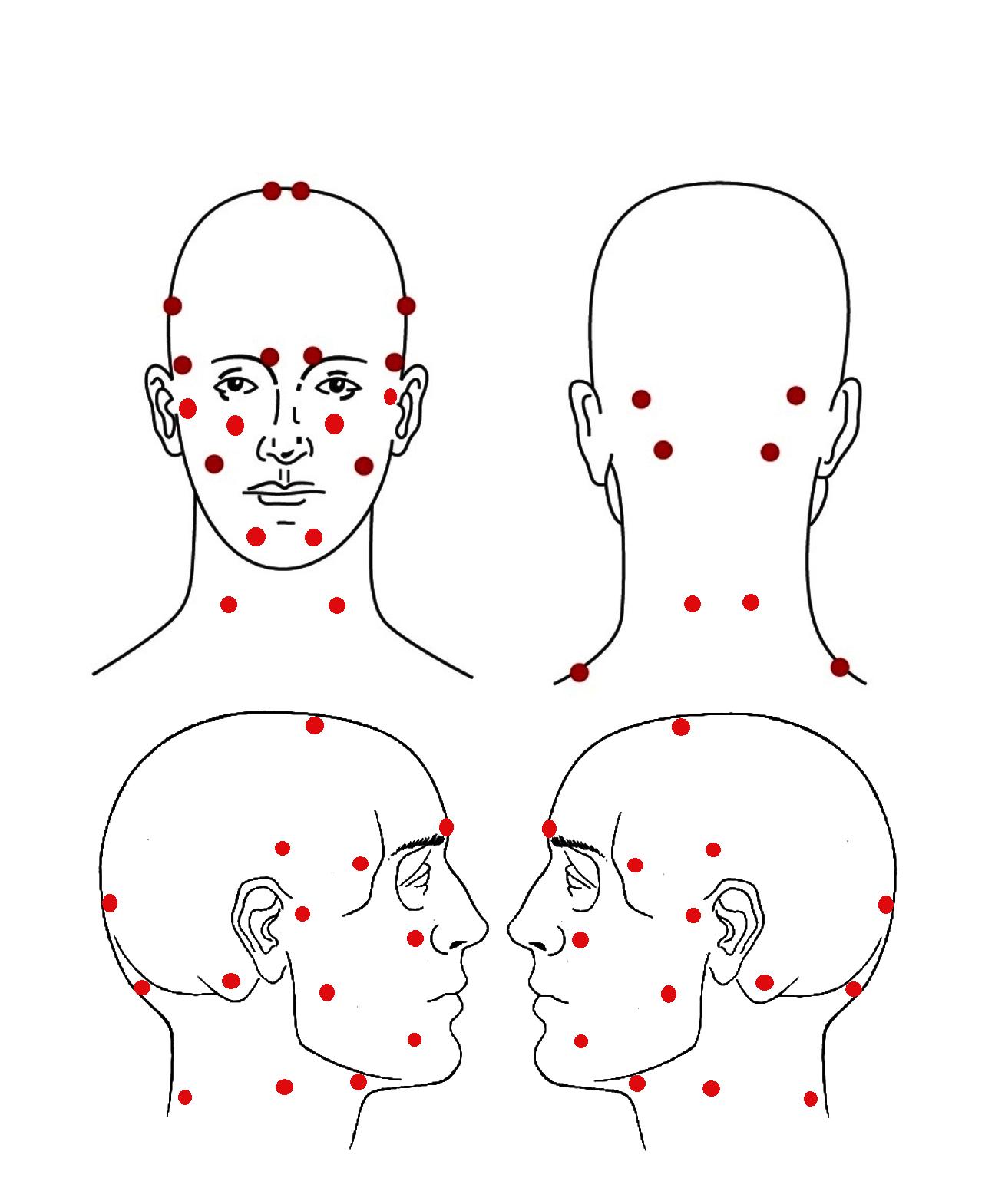 Рис. 3. Коррекция комплекса упражнений в зависимости от локализации болевых ощущений.