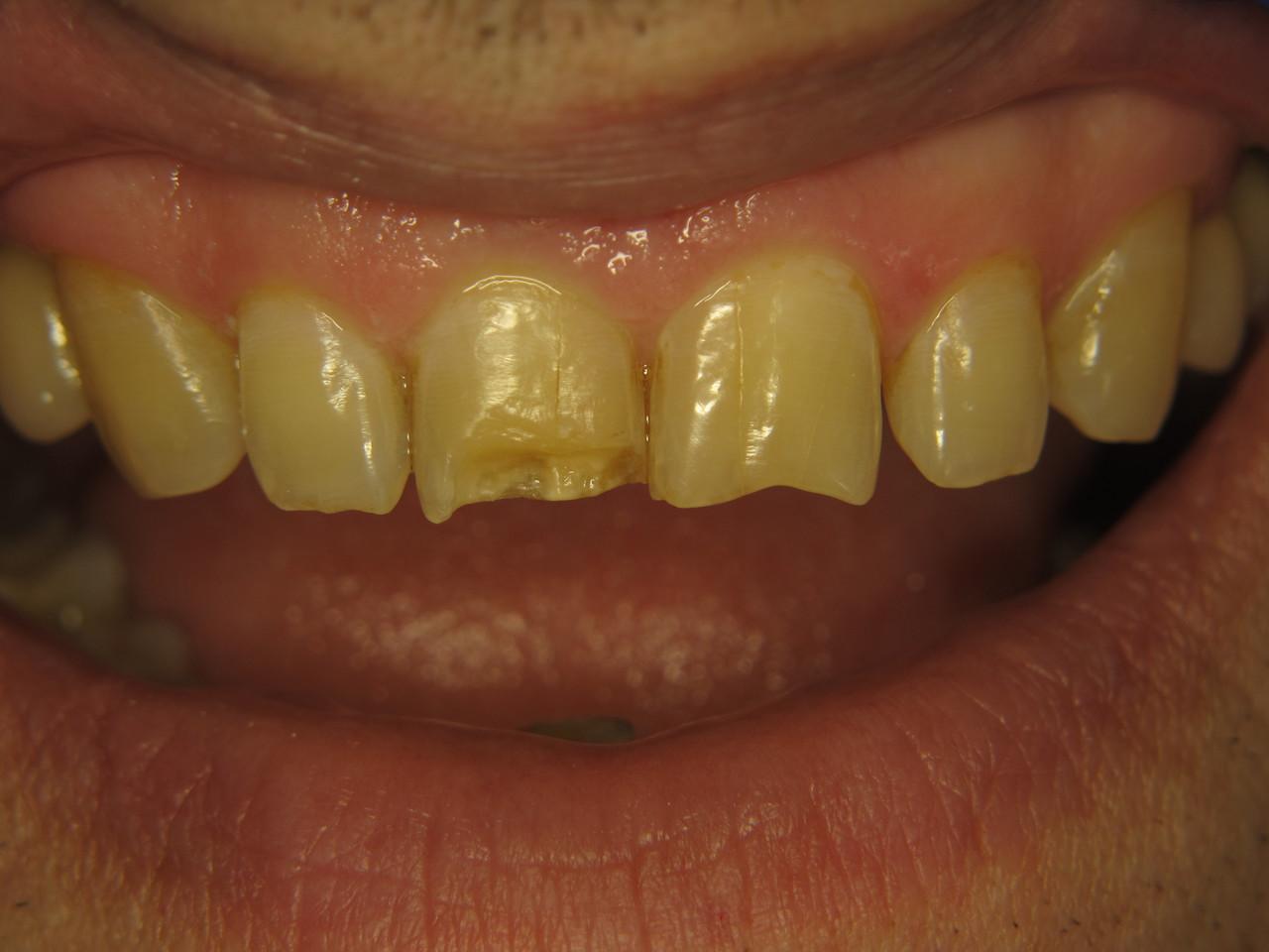 Рис. 1. Зубы 1.1 и 2.1: исходная ситуация.