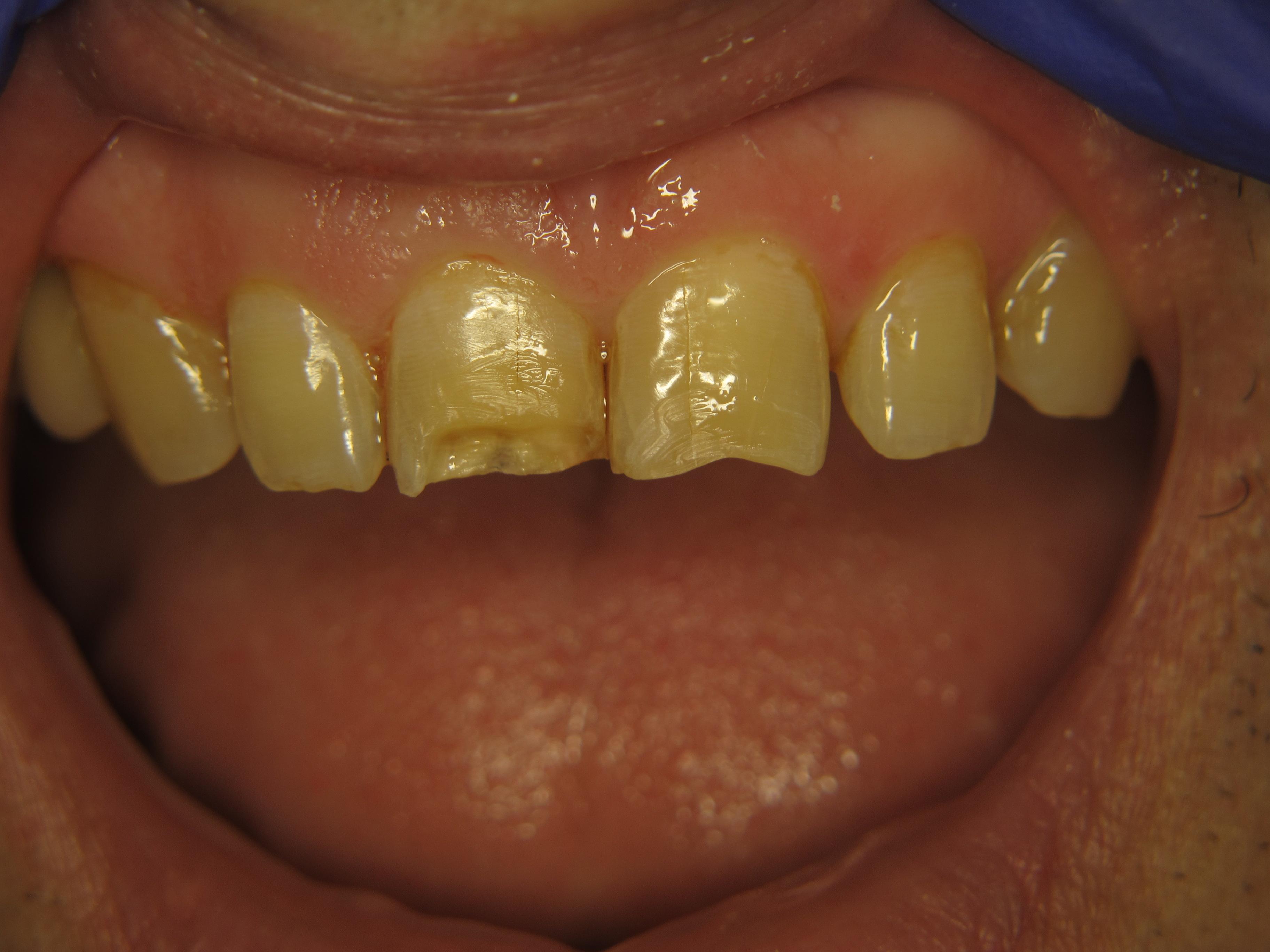 Рис. 2. Зубы 1.1 и 2.1 после препарирования.