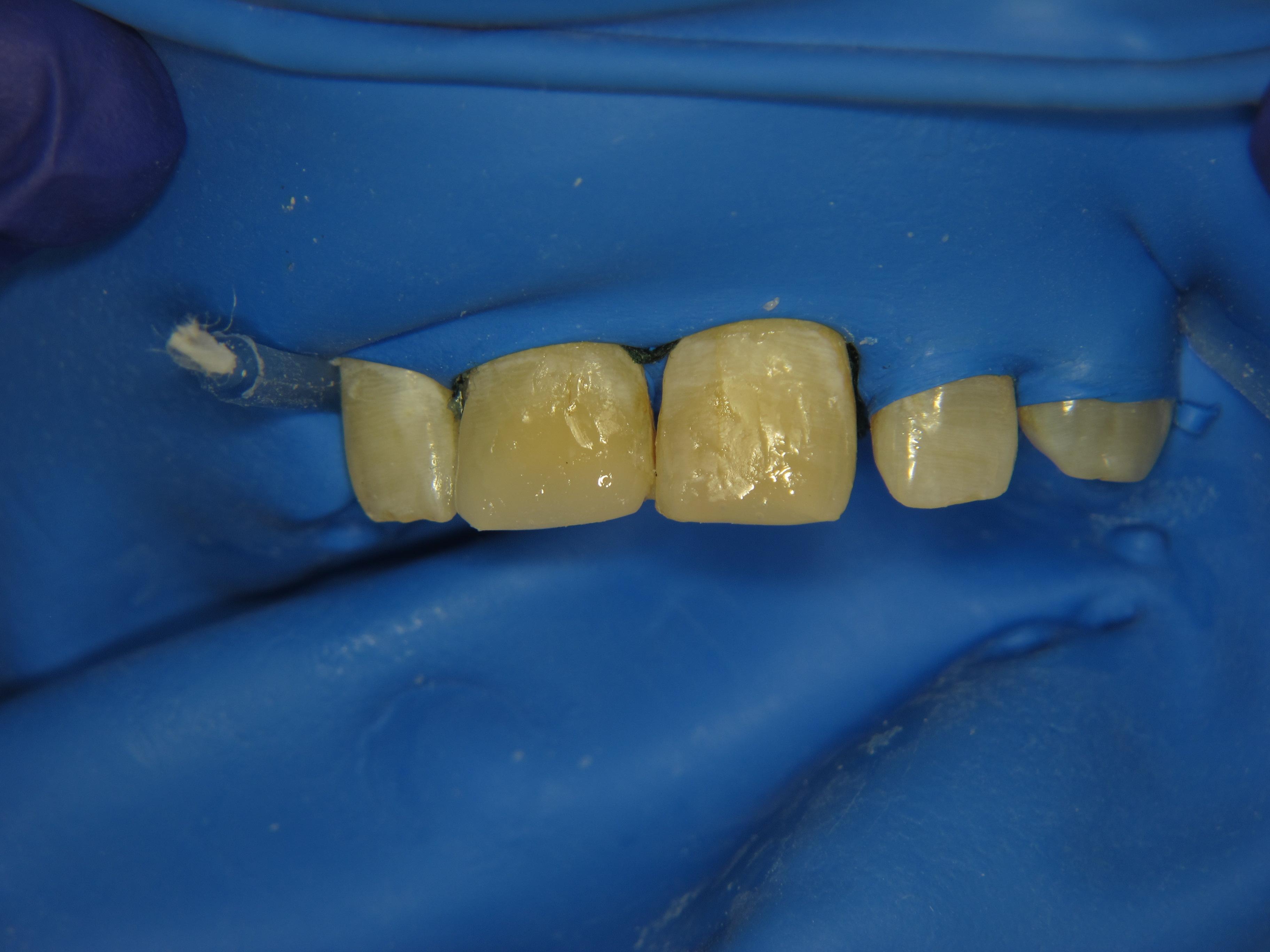 Рис. 4. Зубы 1.1 и 2.1: внесение эмалевого оттенка TD.