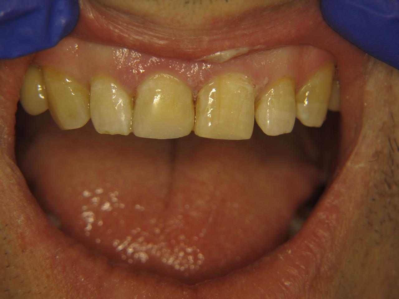 Рис. 5. Зубы 1.1 и 2.1 после реставрации композиционным материалом «Амарис».