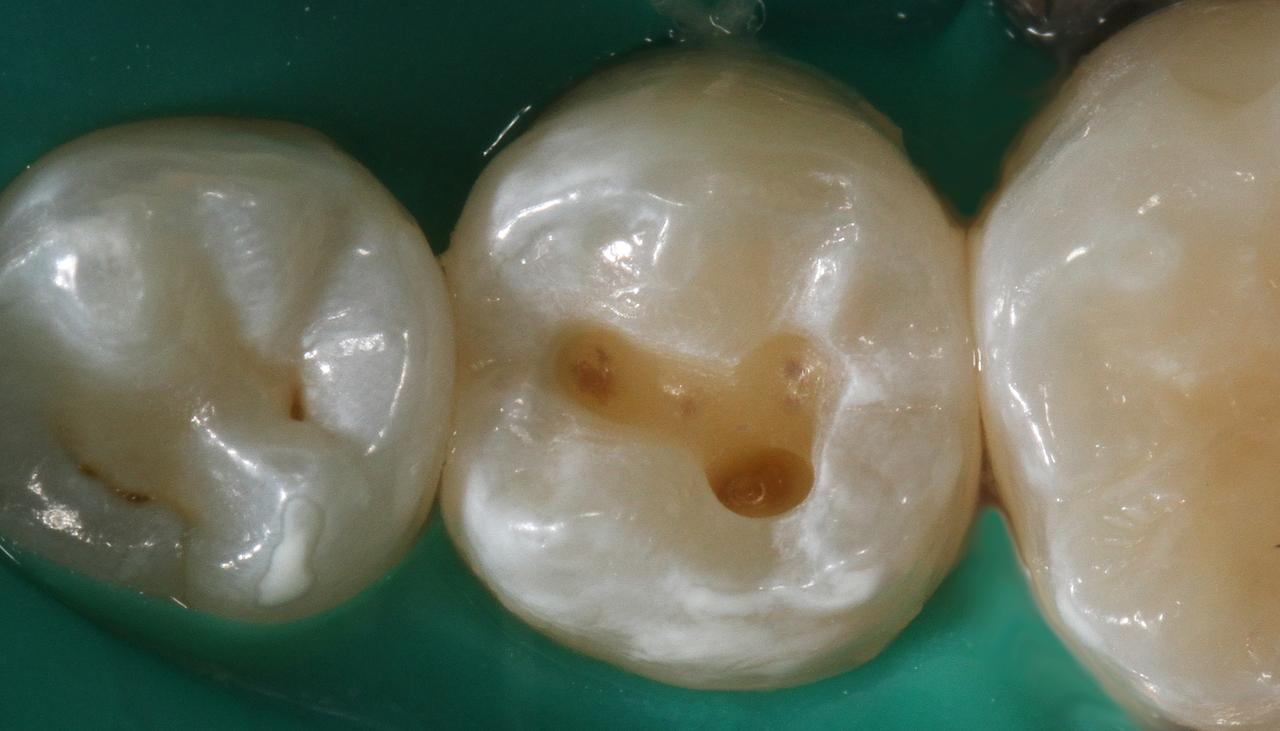 Рис. 10. Произведено препарирование кариозной полости зуба 35. Адгезивная подготовка выполнена с использованием адгезива Adper Single Bond 2.