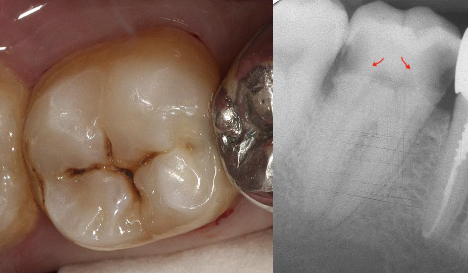 Рис. 21. Исходная ситуация 47 зуба, скрытые полости по II классу, диагноз: хронический пульпит. На Rg: близкое расположение кариозной полости к пульповой камере. Цвет А3 по шкале VITAPAN® Classical.