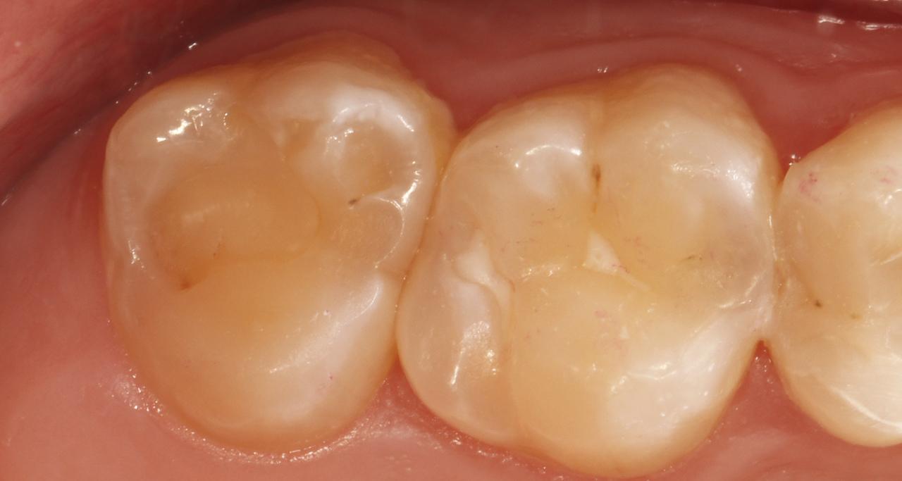 Рис. 25. Исходная ситуация: имеется стираемость и дефект краевого прилегания пломбы зуба 27.