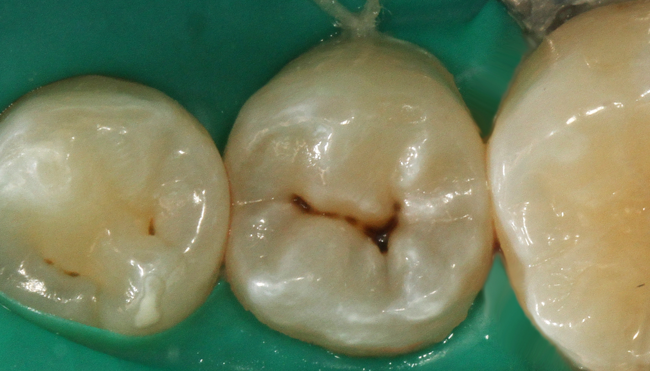 Рис. 7. Исходная анатомия 35 зуба. Диагноз: кариес дентина. Цвет зуба А3 по шкале VITAPAN® Classical.