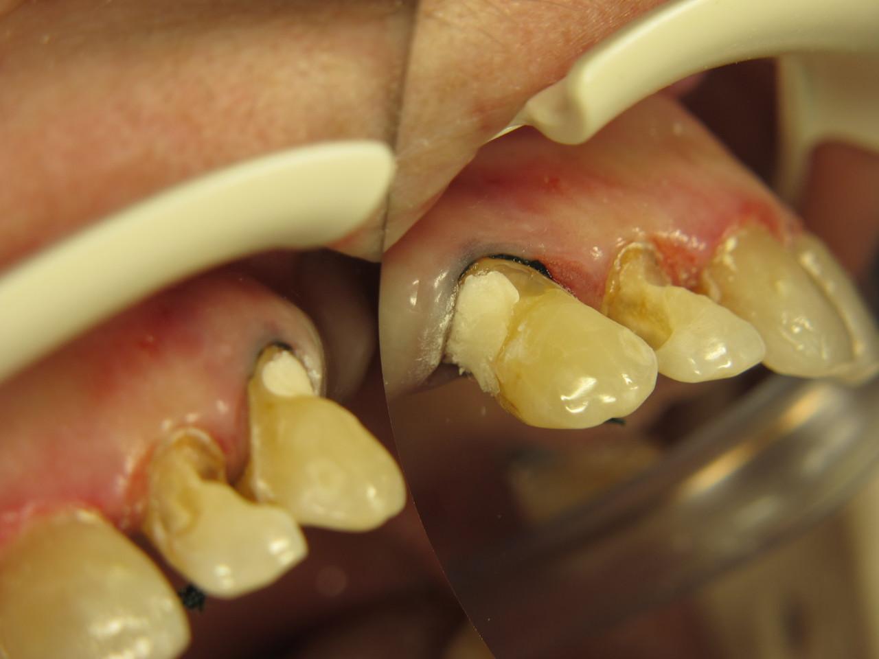 Мне удалили корень зуба не полностью