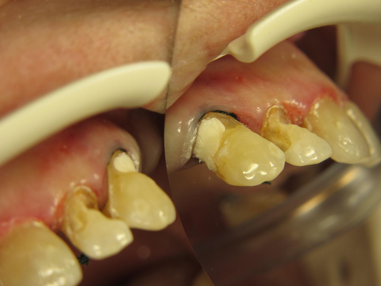 Рис. 3. Зуб 2.3: внесен стеклоиономерный цемент «Ионолюкс».