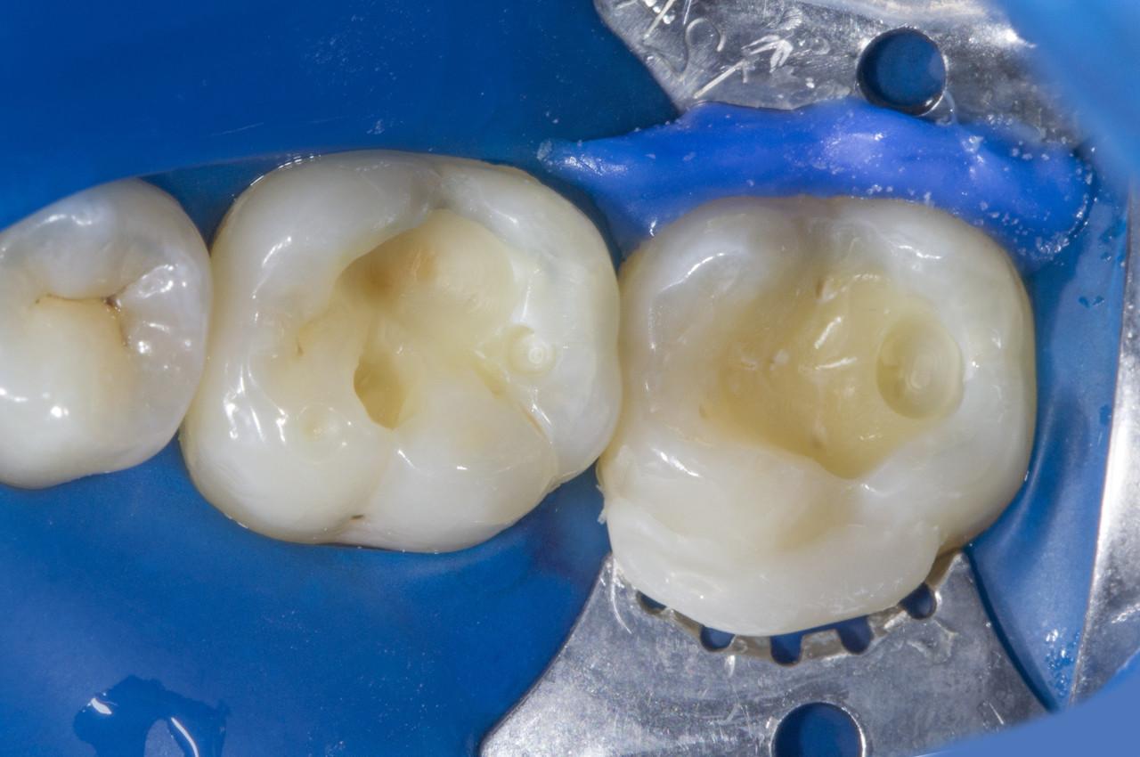 Рис. 3. Удалены старые реставрации, проведено препарирование кариозного дентина, сформированы полости.