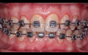 лечение подростка 14 лет, проходящего ортодонтическое лечение