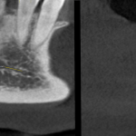 КЛКТ. Сагиттальный и коронарный реформаты переднего отдела нижней челюсти. Стенка канала образована кортикальной частью кости. Красная стрелка — резцовая петля. Зеленый прямоугольник — канал проходит в проекции участка «правила трех пятерок» (рис. 3)