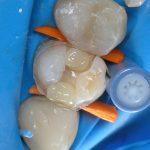 Зуб 2.4: внесение горошин из «Грандио» (рис. 10)