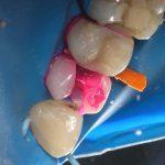 Зуб 2.4: внесен кариес-маркер (рис. 7)