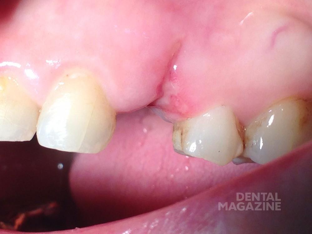 Состояние зубного ряда после удаления зуба: вестибулярная область.Рис. 1б