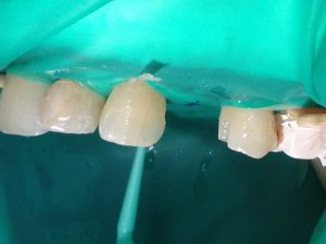 Обработка адгезивом поверхности клыка. Рис. 9б