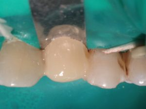 Формирование промежуточной части протеза: вестибулярная поверхность. Рис. 16б