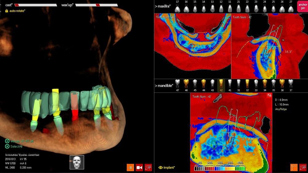 КЛКТ с wax-up. Установлено 6 имплантатов на нижнюю челюсть. С помощью функции Digital Eye определен тип костной ткани в области каждого имплантата. Рис. 3.