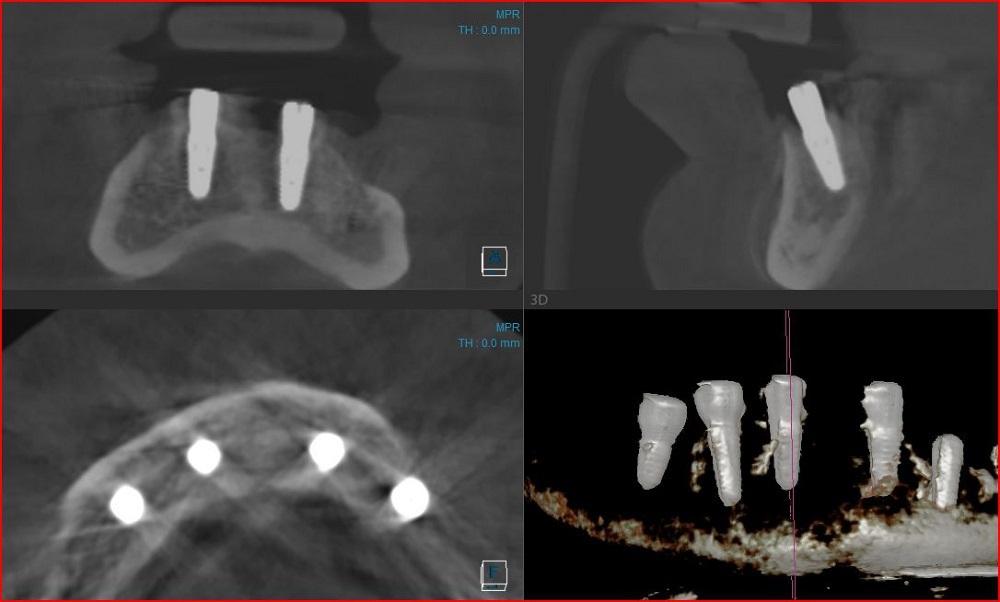 Установленный имплантат в этой же позиции. Рис 6б.