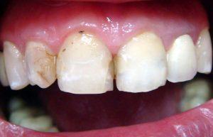 Предварительная коррекция формы зубов необходима. Рис. 1б.