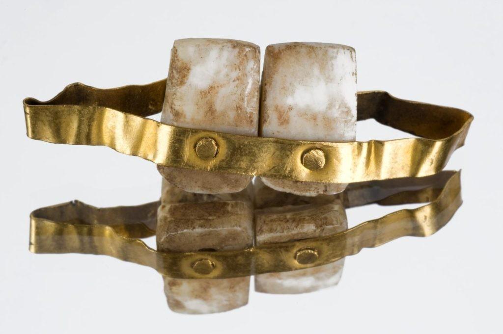 Съемные зубные протезы какие лучше – отзывы, нового поколения без неба