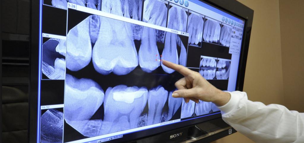 Как делают рентген зуба? Вредно ли делать рентген зубов при беременности?